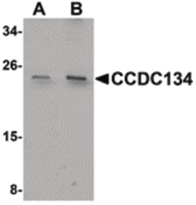 CCDC134 Antibody (PA5-20780) in Western Blot