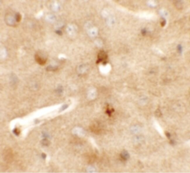 CCDC141 Antibody (PA5-21169) in Immunohistochemistry