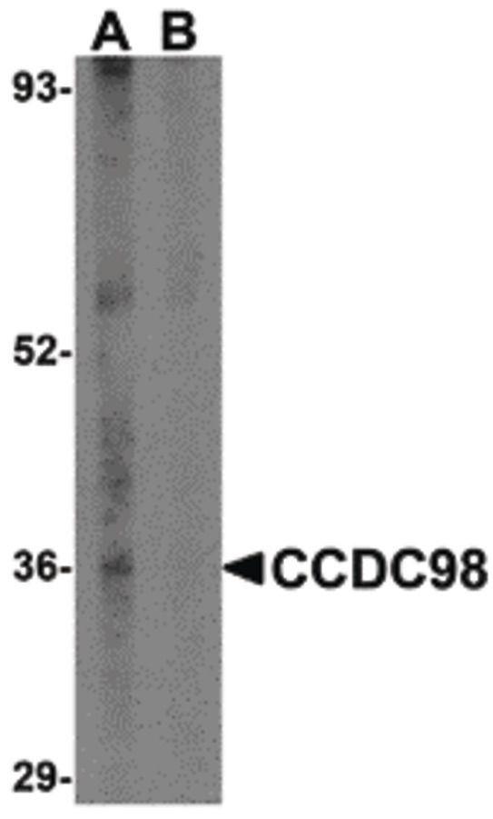 ABRA1 Antibody (PA5-20412) in Western Blot