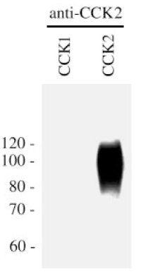 CCKBR Antibody (PA3-201) in Western Blot