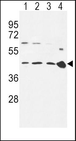 CCR7 Antibody (PA5-24921) in Western Blot