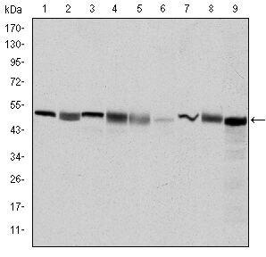 TCP-1 beta Antibody (MA5-15901) in Western Blot