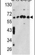 TCP-1 gamma Antibody (PA5-12523) in Western Blot