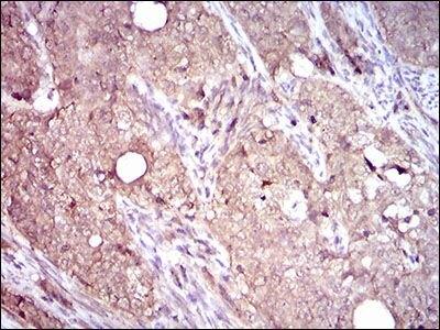 CD104 Antibody (MA5-17104) in Immunohistochemistry