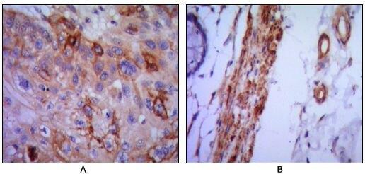 VCAM-1 Antibody (MA5-15636)