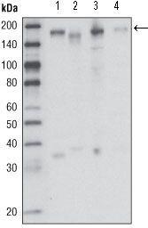 RON Antibody (MA5-15441) in Western Blot