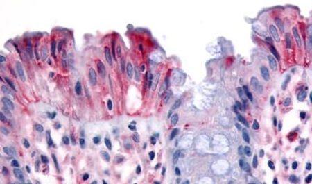 RON Antibody (PA5-32932)