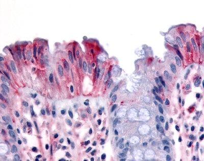 RON Antibody (PA1-86575)