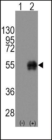 CD14 Antibody (PA5-13306) in Western Blot
