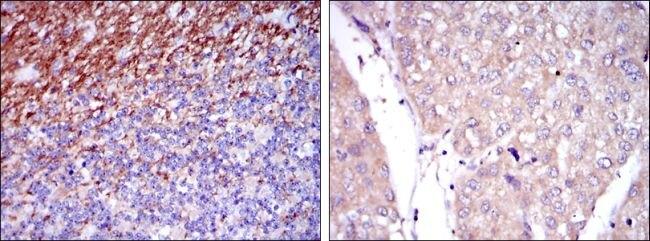 SSEA1 Antibody (MA5-17042) in Immunohistochemistry