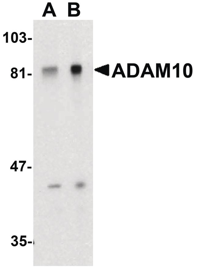 ADAM10 Antibody (PA5-19898) in Western Blot