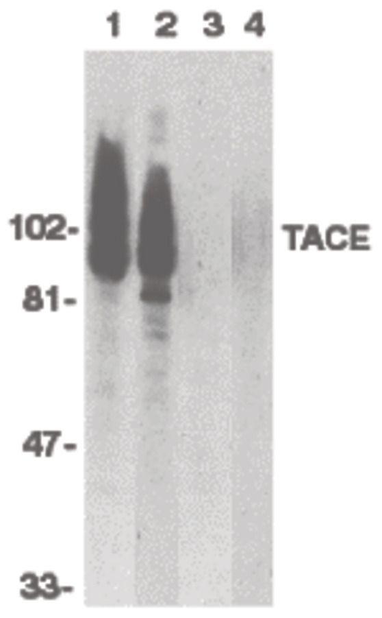 ADAM17 Antibody (PA5-19872) in Western Blot