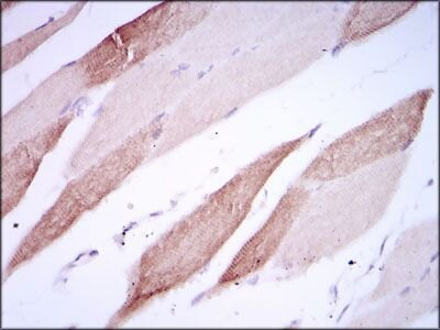 CD166 Antibody (MA5-17028)