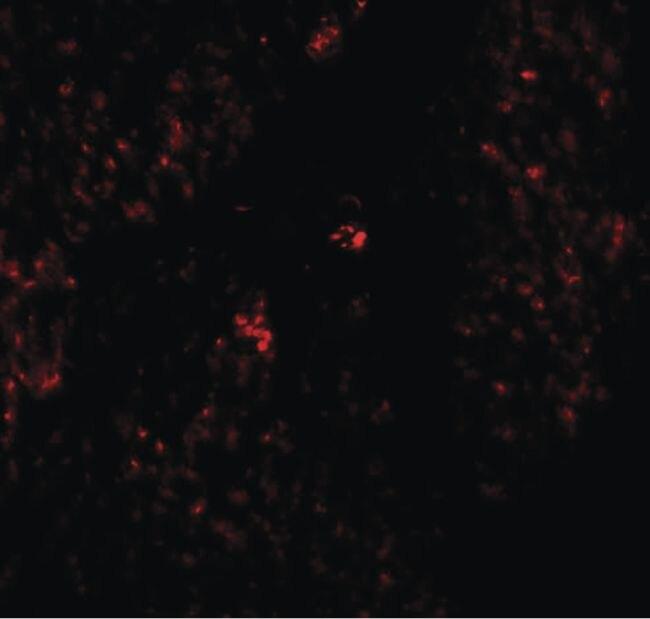 RHAMM Antibody (PA5-21105)