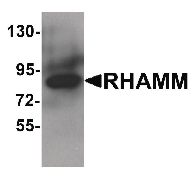 RHAMM Antibody (PA5-21105) in Western Blot