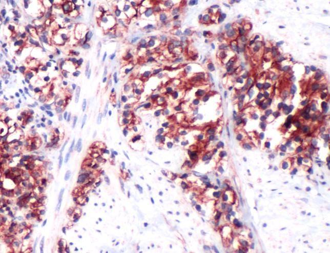 RHAMM Antibody (PA5-32309)