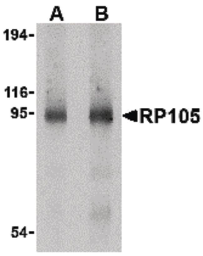CD180 Antibody (PA5-20250) in Western Blot