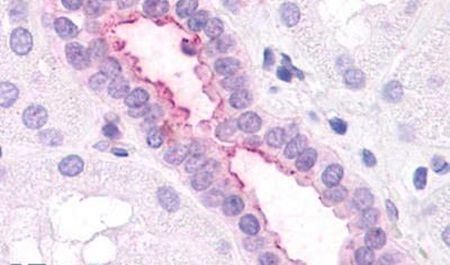 CXCR2 Antibody (PA5-33455)