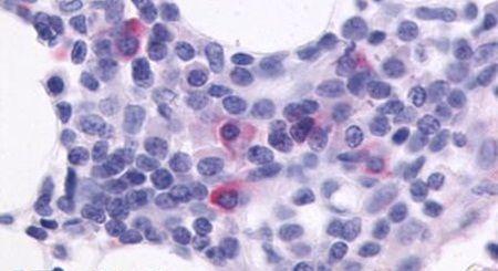 CXCR5 Antibody (PA5-33459)