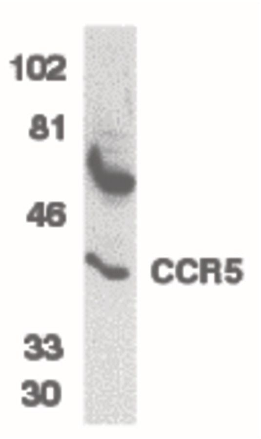 CCR5 Antibody (PA5-19862) in Western Blot