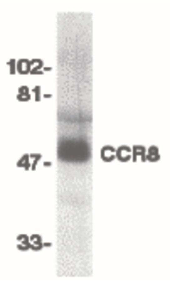 CCR8 Antibody (PA5-19911)