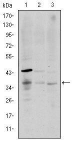 CD1a Antibody (MA5-15828) in Western Blot