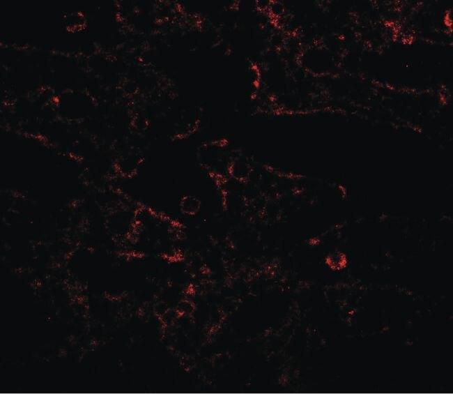 IL17RA Antibody (PA5-34571)