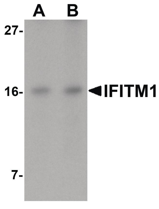 IFITM1 Antibody (PA5-20988) in Western Blot