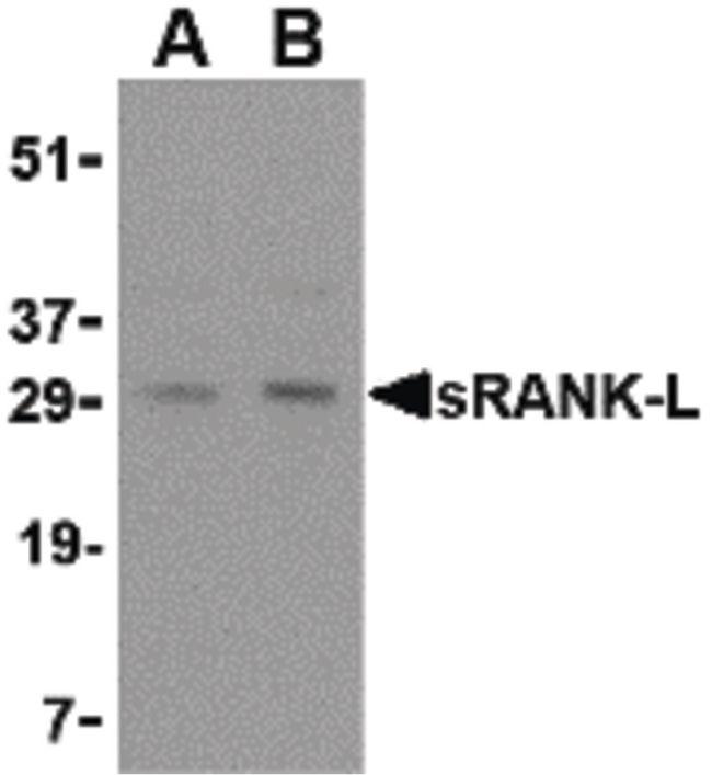 RANKL Antibody (PA5-20291) in Western Blot