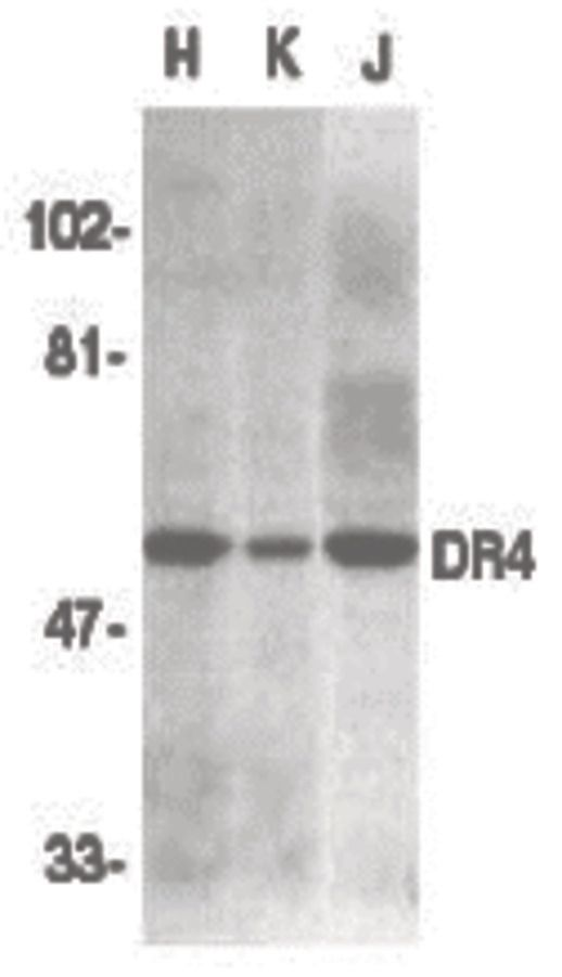 DR4 Antibody (PA5-19887)