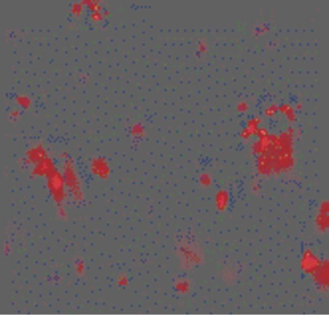 CD263 Antibody (PA5-19959) in Immunofluorescence