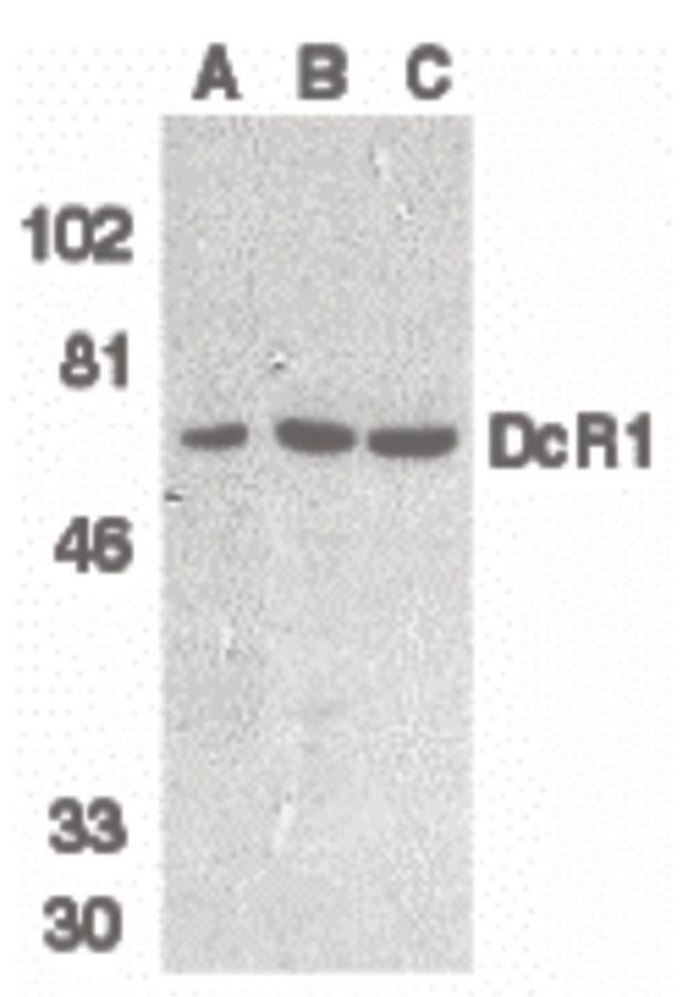 CD263 Antibody (PA5-19959) in Western Blot