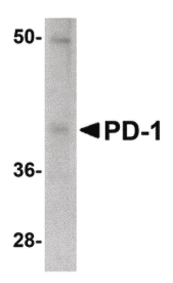 PD-1 Antibody (MA5-15781) in Western Blot