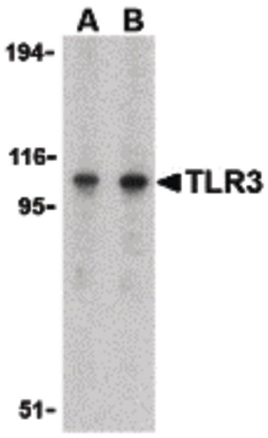 TLR3 Antibody (PA5-20183) in Western Blot