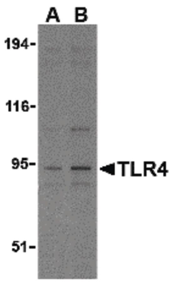 TLR4 Antibody (PA5-20021) in Western Blot