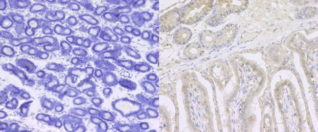 ITGB1 Antibody (PA5-29606) in Immunohistochemistry