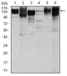 ITGB1 Antibody (MA5-17103) in Western Blot