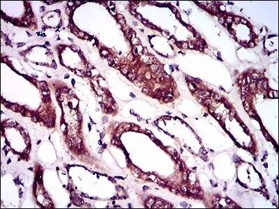 BMPR1A Antibody (MA5-17036) in Immunohistochemistry