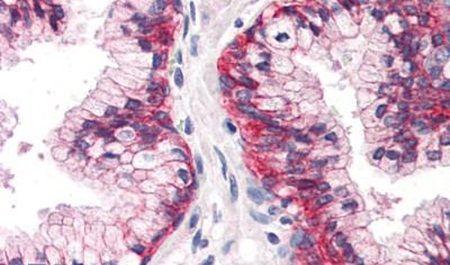 CD298 Antibody (PA5-33344) in Immunohistochemistry (Paraffin)