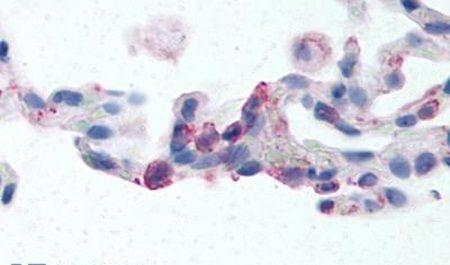 EMR2 Antibody (PA5-32746)