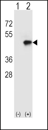 CD4 Antibody (PA5-11581)