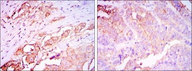 CEA Antibody (MA5-15800)