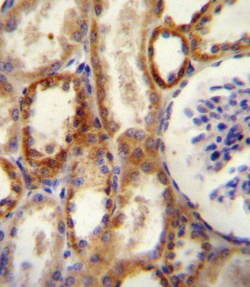 CD73 Antibody (PA5-11870) in Immunohistochemistry