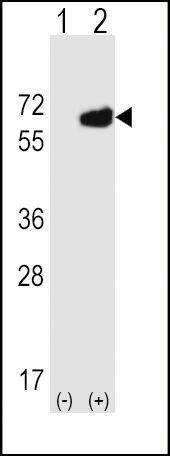 CD73 Antibody (PA5-11871) in Western Blot