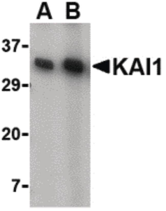 CD82 Antibody (PA5-20356) in Western Blot