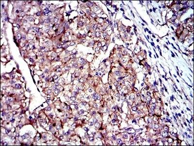 CD9 Antibody (MA5-17049) in Immunohistochemistry