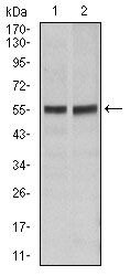 FAS Antibody (MA5-17073) in Western Blot