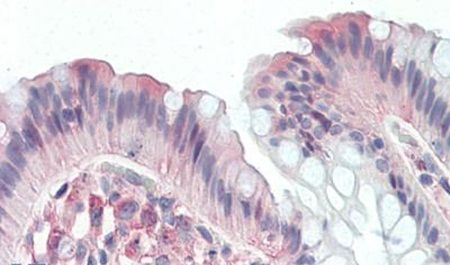 CD97 Antibody (PA5-33414) in Immunohistochemistry (Paraffin)