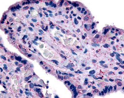 CD98 Antibody (PA1-85012) in Immunohistochemistry (Paraffin)