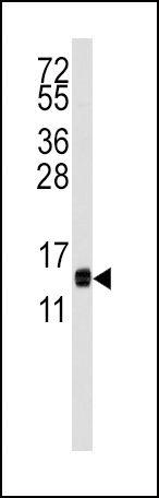 CDA Antibody (PA5-12498) in Western Blot